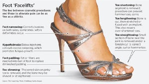 Cosmetic Surgery to Fit into High Heels?