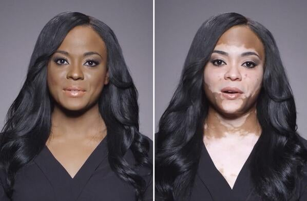 Must See: Fearless Black Woman Shares Her Struggles With Vitiligo