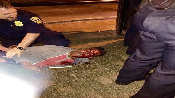 UVA Student Left Bloodied After Arrest Files $3 Million Lawsuit Against ABC Agents