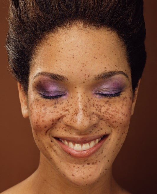 Getting Speckled: How to Fake Freckles
