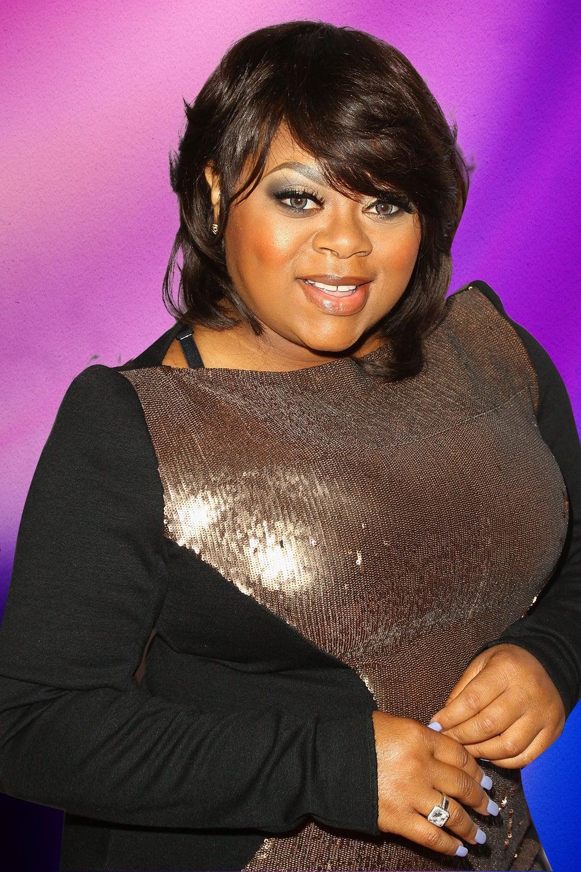 Countess Vaughn Opens Up To Fans About Having Vitiligo
