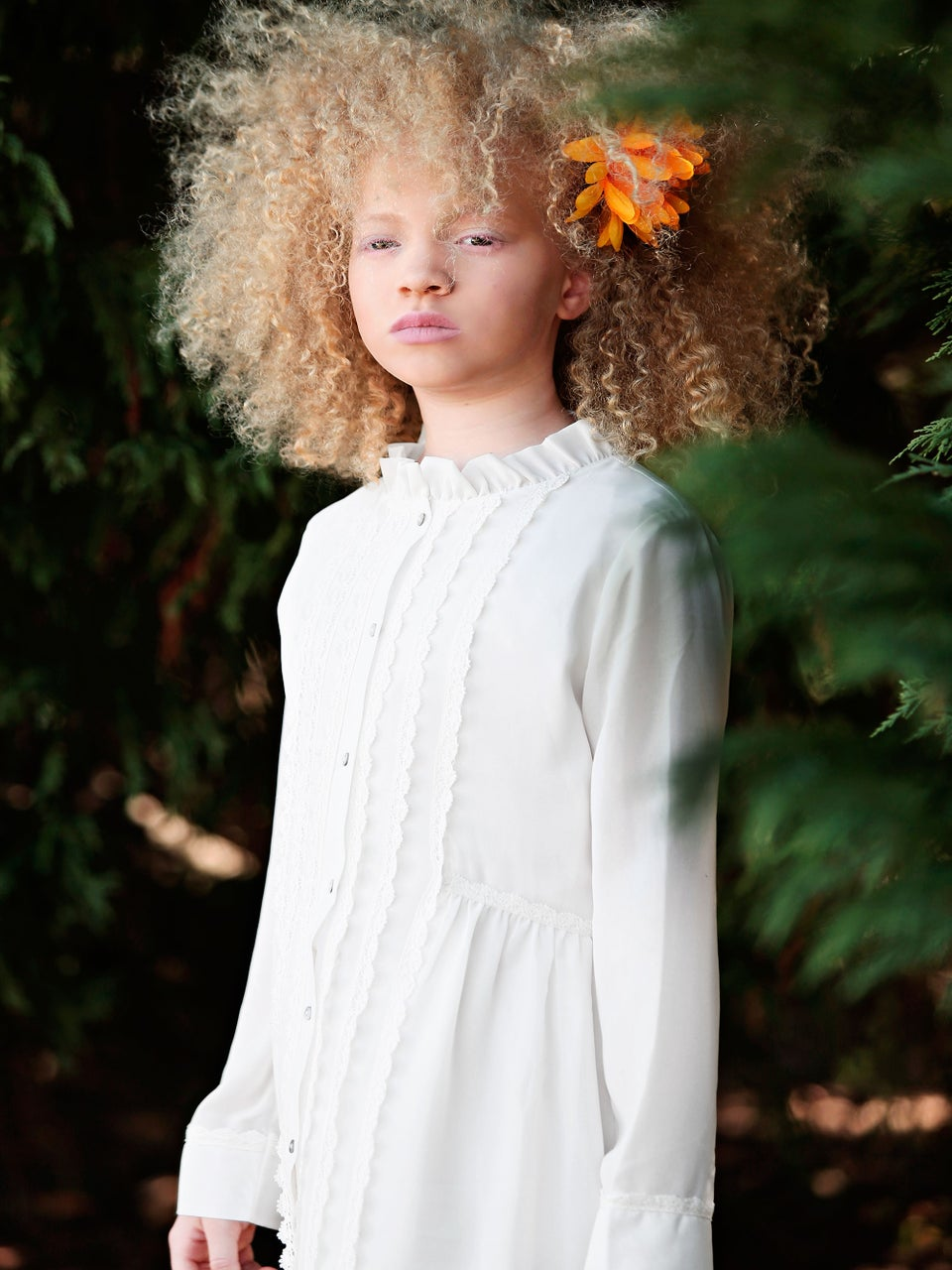 Ava Clarke & Shala Edney Tell Us Why Albinism Is The 'Perfect Flaw'