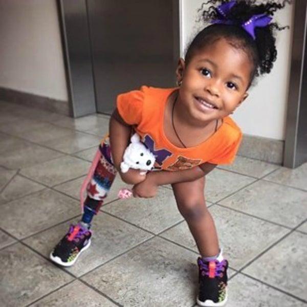 This Adorable 2-Year-Old Princess Isn't Letting A Prosthetic Leg Steal Her Smile