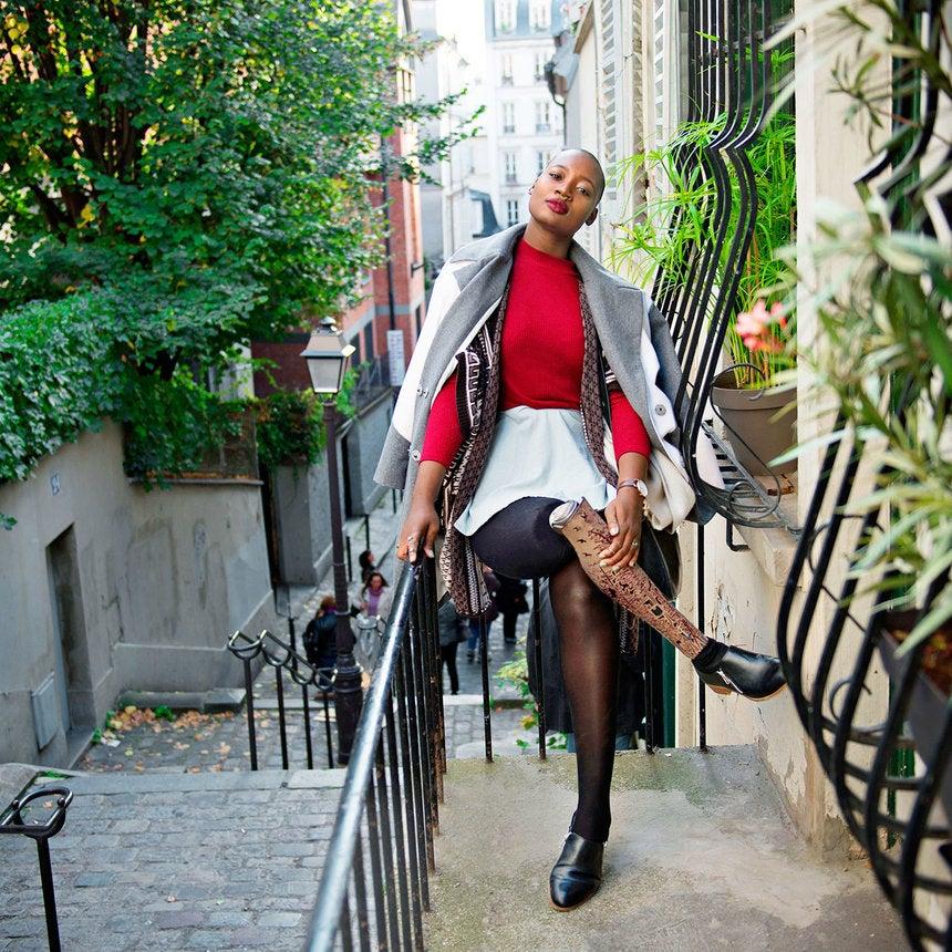 Blogger Mama Càx Details Her Journey To Self Acceptance After Amputation