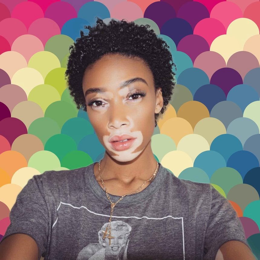 Winnie Harlow Shares a Instagram Video That's Both Surprising and Inspiring
