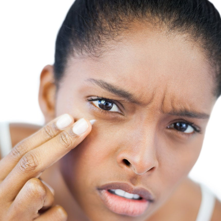 7 Ways to Get Rid Of Dark Circles Under Your Eyes
