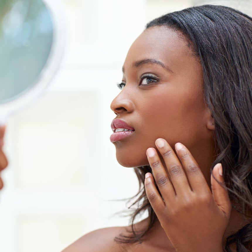 Popping Your Pimple Isn't the Only Cause of Acne Scarring