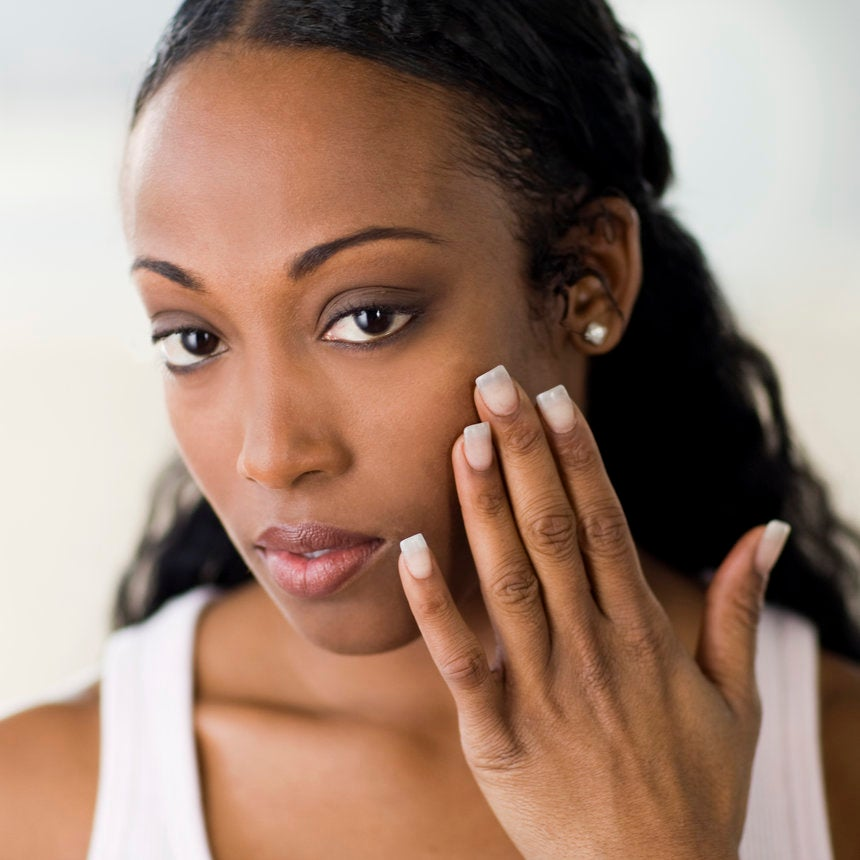 Melasma Affects Lots of Black Women, Everything You Need to Know