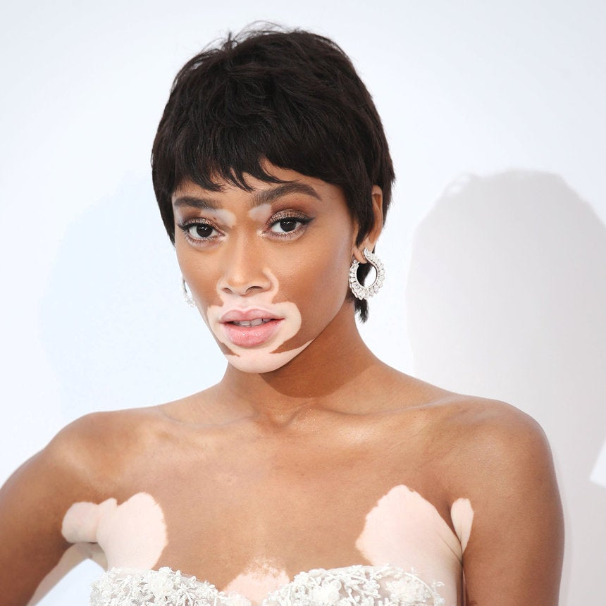 Model Winnie Harlow Spreads Body Positivity While Posing In A Thong
