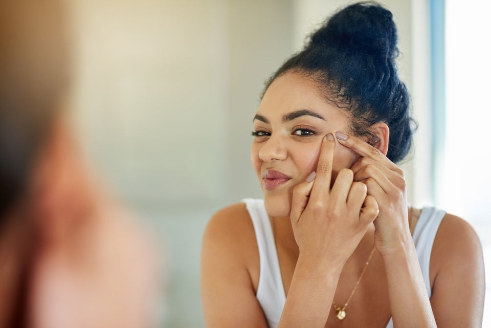 How To Get Rid Of Dark Spots, According To 7 YouTube Vloggers