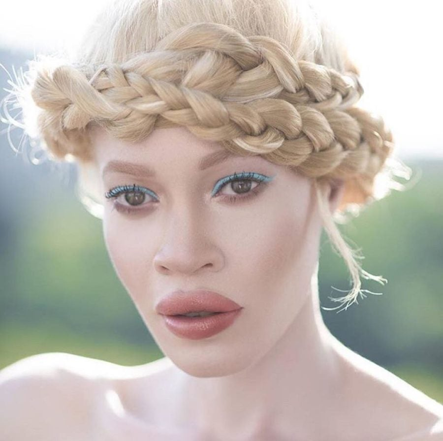 Wet n Wild Chose AModel With Albinism As The Face Of Its New Beauty Campaign
