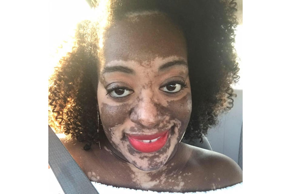 Bride Struggles With Vitiligo Before Her Wedding: 'It Has Made Me AStronger Person'