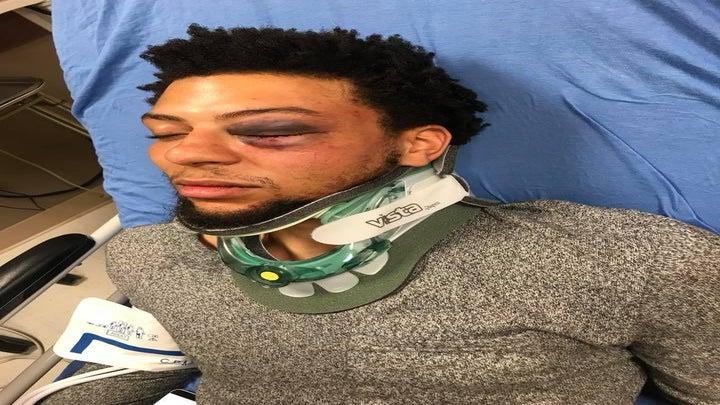 This Black Navy Vet Says Bouncers At Dallas Strip Club Beat Him, Called Him Racial Slurs