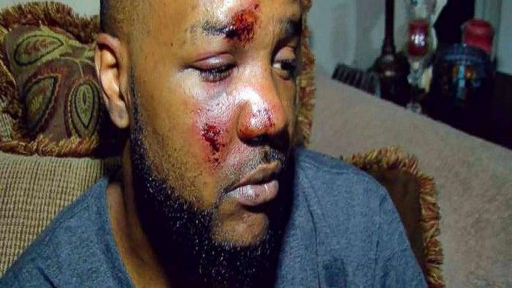 Mississippi Cops Dismissed After Allegedly Beating A Black Man