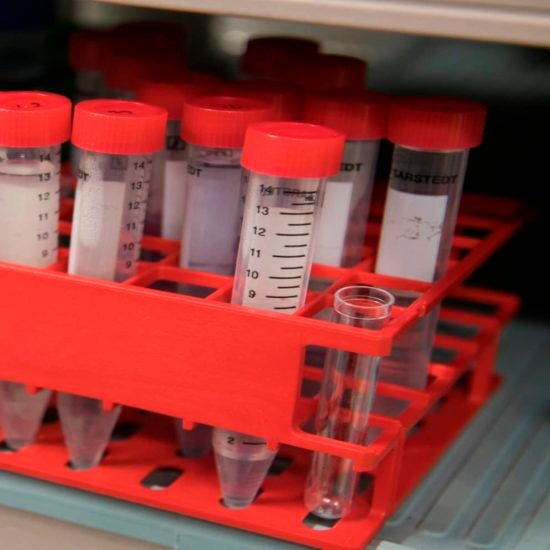 Black Women In Alabama Die Of Cervical Cancer At More Than Twice The National Average