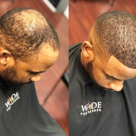 Are You Still Side-Eyeing The 'Man Weave' Craze? Here's Some Insight On The Trend That Has The Internet Shook