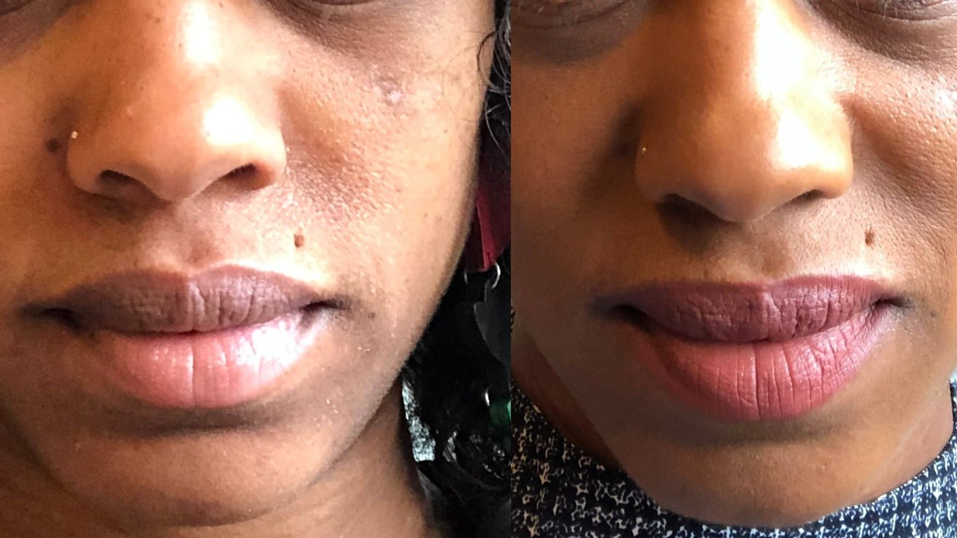 This $8 Drugstore Brand Brought My Skin Back To Life