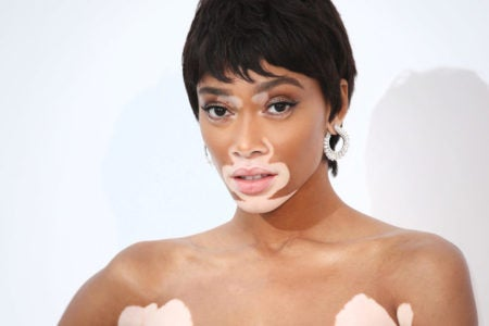 Winnie Harlow's Body Looks Like A Work Of Art In Bikini Photos