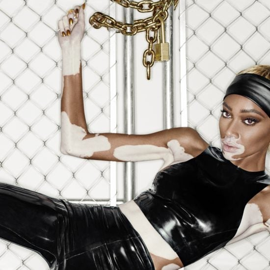 Winnie Harlow And Steve Madden Team Up For A Capsule Collection