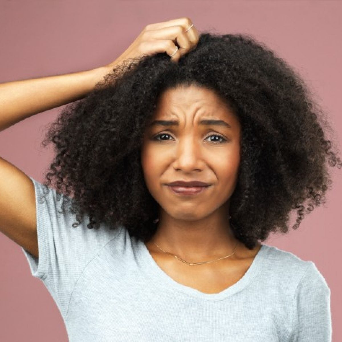 Losing Your Hair? This Is Why You Need A Scalp Analysis