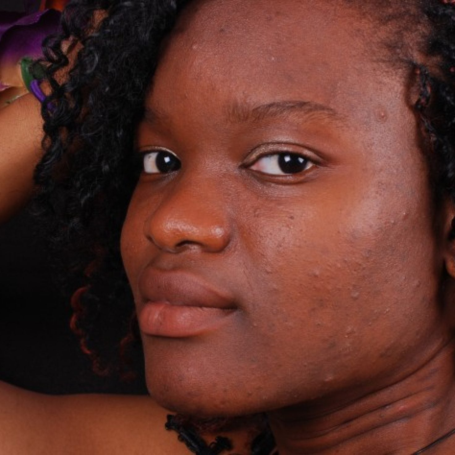 This Key Ingredient Could Help You Prevent Hyperpigmentation