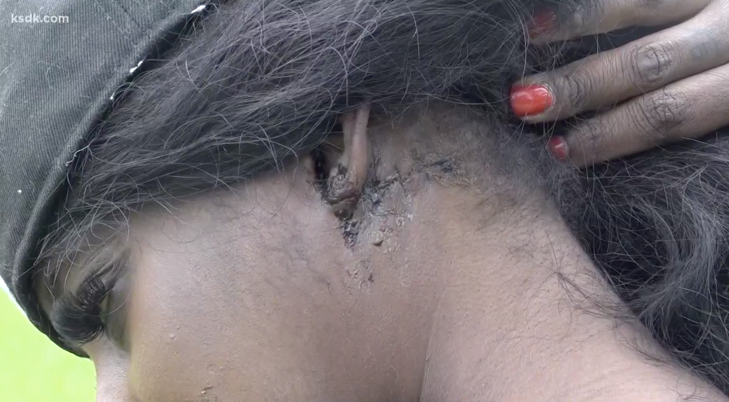 April Brown shows wounds sustained after being pistol whipped by Adam Lee Pillow