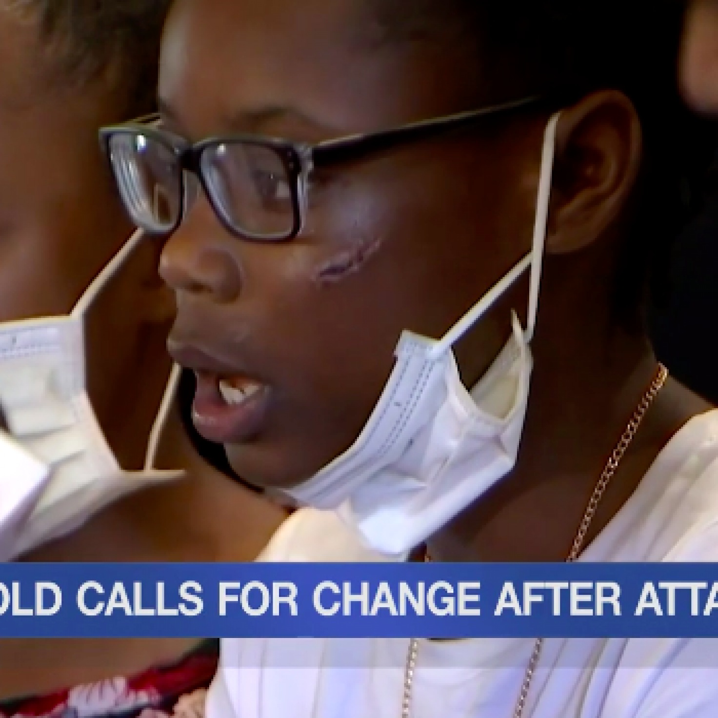 Kansas 11-Year-Old Victim Of Racist Attack, Family Says
