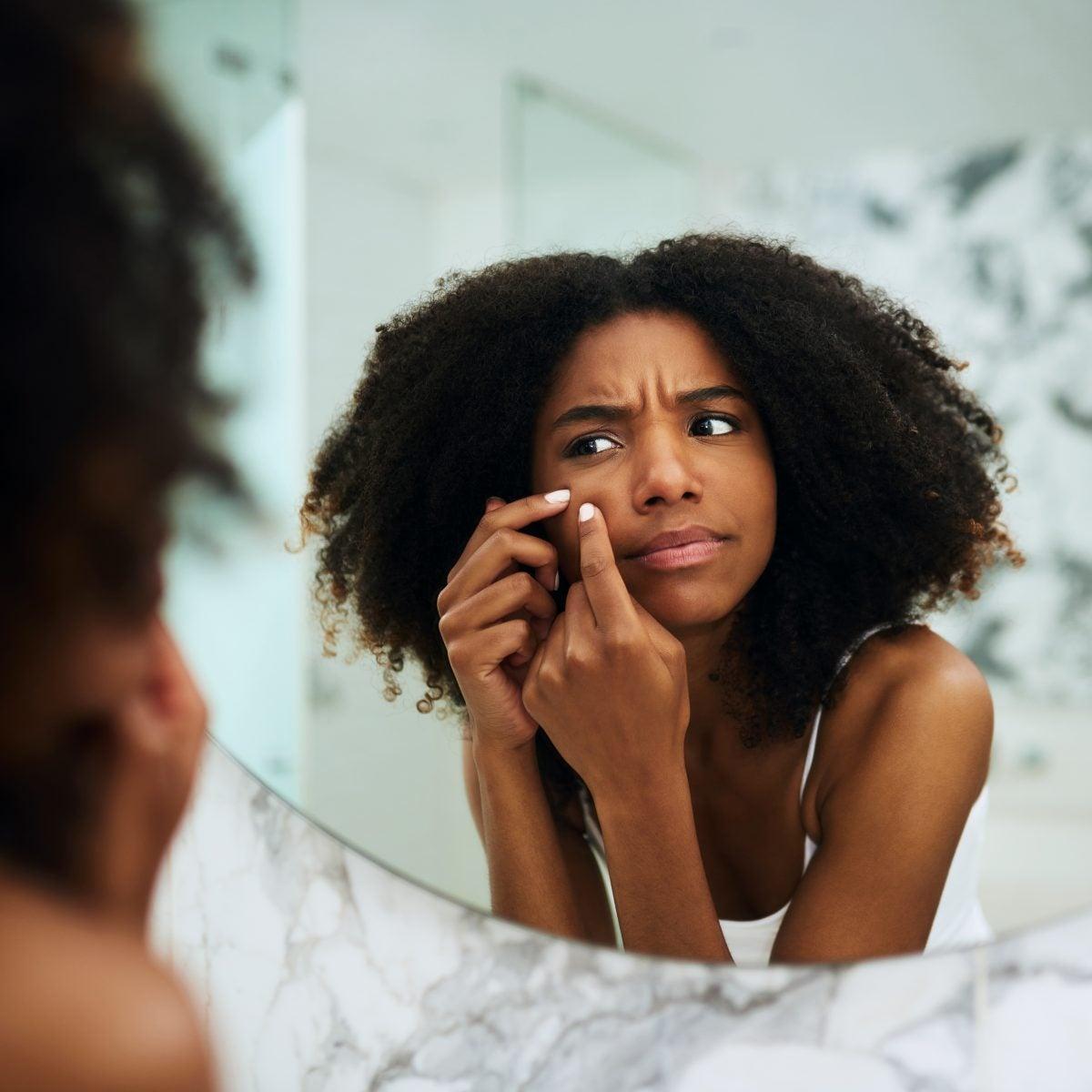 A Black Dermatologist Explains How To Clear Up Those Stubborn Dark Spots