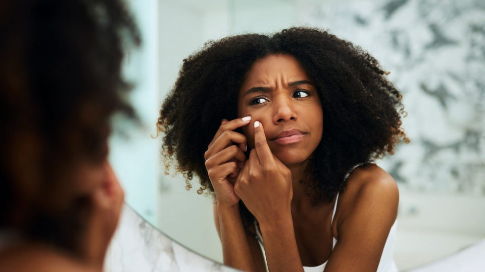 This Black Dermatologist Explains How To Treat Hyperpigmentation On Dark Skin